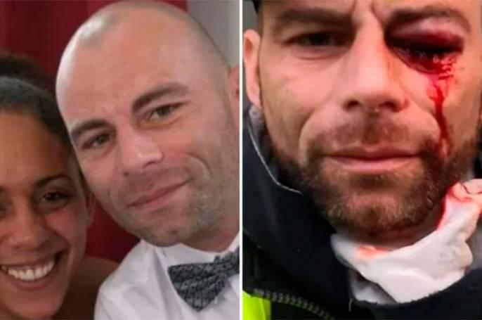 Полицейский террор в Европе жертвы макроновского режима